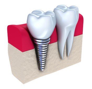 dental-implants-1.jpg