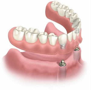implant-supported-denture1.jpg